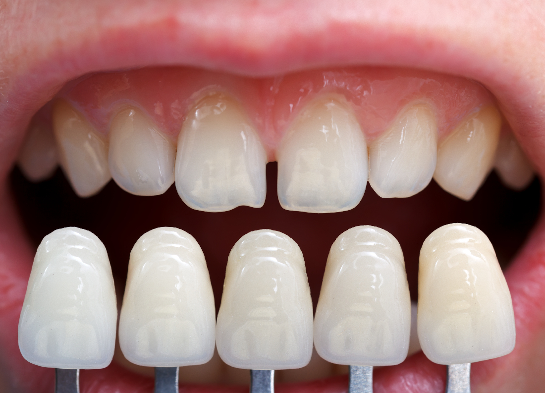 Photos shaved teeth for porceline veneers
