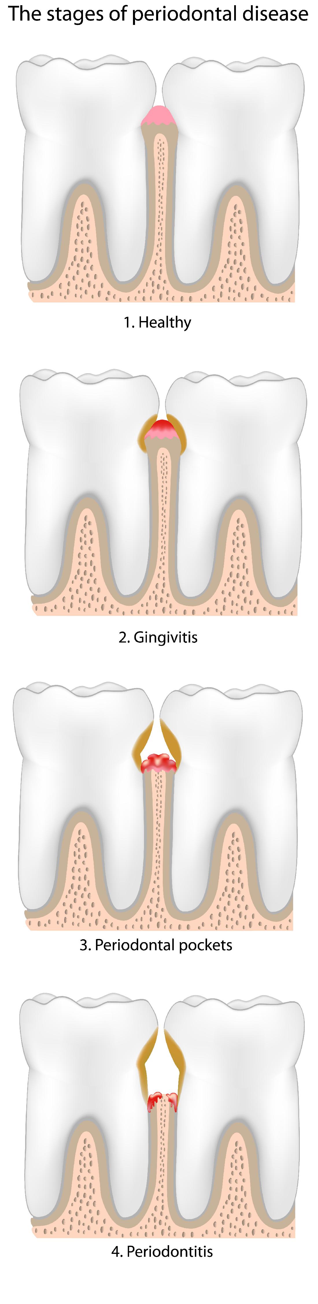 gum disease 2